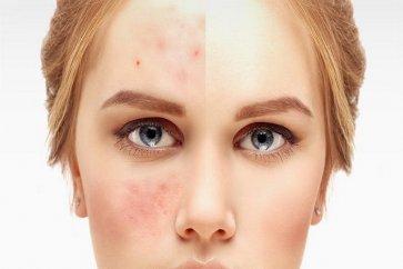همه چیز درباره جوش صورت، از علتهای ایجاد جوش تا درمانهای دارویی و خانگی