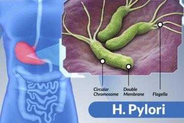 باکتری هلیکوباکتر پیلوری  H.pylori چیست