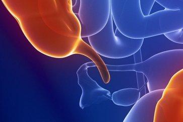 همه چیز درباره آپاندیس appendix و بیماری آپاندیسیت Appendicitis
