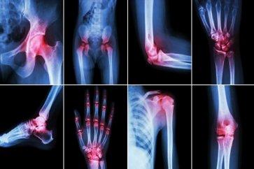 نگاهی به بیماری آرتروز Arthritis از علائم تا راههای درمان آن
