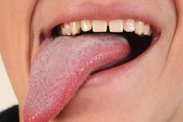 آشنایی با برفک دهان یا سفیدی روی زبان؛ از علائم و عامل ایجاد کننده تا درمانهای خانگی و دارویی