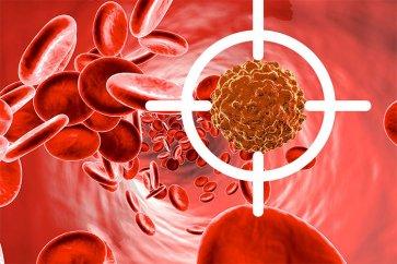 حقایقی در مورد سرطان خون و تحلیل بقای بیماران مبتلا به سرطان خون حاد میلوئید
