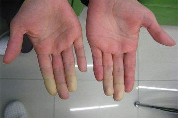 سندرم رینود و علت کاهش گردش خون در دست و پا