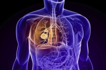 معرفی بیماری انسداد ریه COPD به همراه علائم و راههای درمان