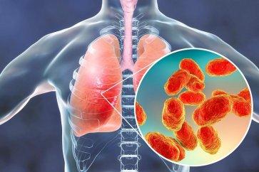 درباره بیماری پنومونی Pneumonia یا ذات الریه چه میدانید؟
