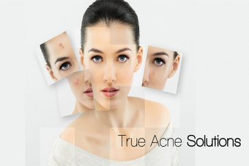 درمانهای خانگی جوشهای صورت و آکنه با استفاده از ویتامینها و مواد معدنی