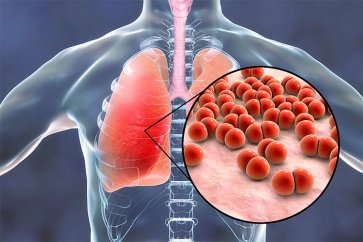بیماری عفونی برونشیت و التهاب ریه چیست و چطور باید آن را درمان کرد