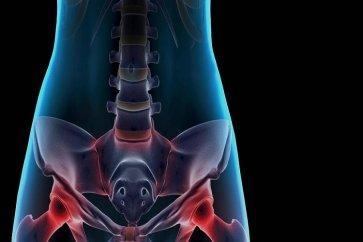 علت دردهای مزمن لگنی pelvic pain در خانمها چیست؟
