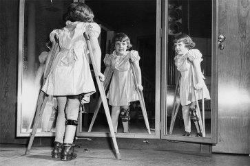 فلج اطفال چیست و چگونه انتقال مییابد؟