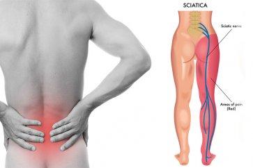 علت درد در ناحیه پا و کمر چیست و ارتباطش با درد سیاتیک یا سیاتالژی چه میباشد؟
