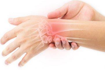 علت درد در ناحیه مچ دست و ارتباط آن با بیماری کین باخ یا نکروز استخوان لونیت چیست