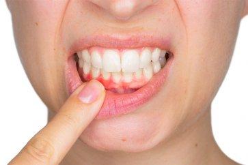 ژنژیویت یا التهاب لثه چیست و چطور این تورم را کاهش دهیم؟