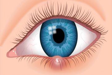 8 روش درمان خانگی موثر برای گلمژه، التهاب و قرمزی چشم