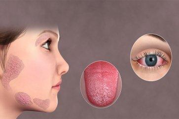 ارتباط بین خشکی دهان و خشکی چشم با سندرم شوگرن چیست و چطور باید آن را درمان کنیم؟