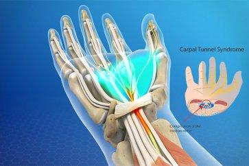 ارتباط درد و احساس سوزش در دست با سندرم تونل کارپال، به همراه روشهای درمان آن