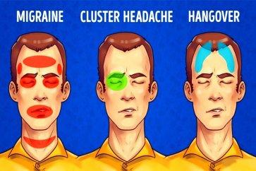 بررسی علت سردرد خوشهای و نحوه درمان آن