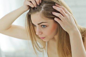 علت ریزش مو و طاسی در زنان چیست و چطور باید شیوع آلوپسی آندروژنتیک را درمان کرد؟