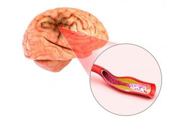 بیماری آنوریسم یا برآمدگی رگ چیست؟ به همراه بررسی علل، نشانهها و روشهای درمان