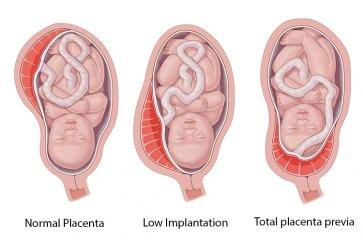 ارتباط خونریزی واژن در دوران بارداری با بیماری جفت سر راهی به همراه علل و روشهای درمان آن