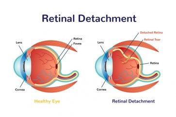 جدا شدگی شبکیه چشم چیست و چطور باید آن را تشخیص و درمان کنیم؟