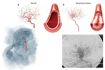 با بیماری سندرم مویامویا بیشتر آشنا شوید؛ از علل تا روشهای درمانی