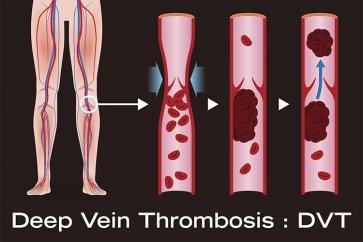 علت تورم و قرمزی در پا و ارتباط آن با بیماری ترومبوز وریدی عمقی چیست و چگونه درمان میشود