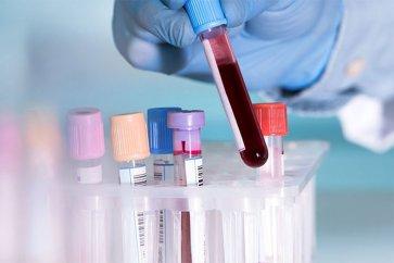 پارامتر (RDW) یا میزان پراکنش (پراکندگی) گلبولهای قرمز در آزمایش خون