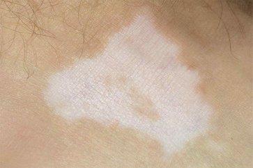 علت بروز لکههای سفید بر روی پوست چیست؟