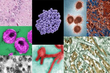 لیستی از مهمترین بیماریهای واگیرداری که باید آنها را بشناسید