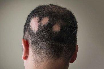 ریزش مو و طاسی منطقهای (alopecia areata) چیست و چگونه درمان میشود