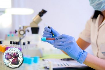 فاکتور نوتروفیل در آزمایش خون چیست و چه نقشی را در بدن ایفا میکند؟