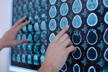 بررسی انواع تومورهای مغزی به همراه نحوه تشخیص بیماری و راهکارهای درمانی