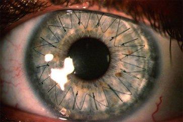 نکاتی مهم در رابطه با پیوند قرنیه چشم یا کراتوپلاستی