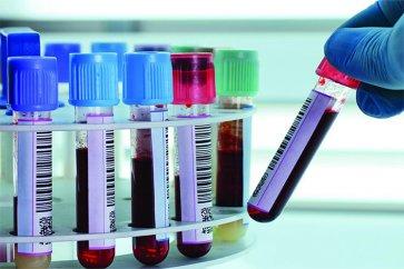 فاکتور ائوزینوفیل در آزمایش خون به چه معنا است؟