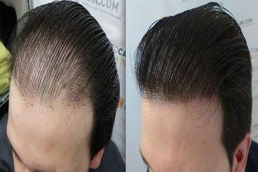 آشنایی با  روشهای کاشت مو و نکاتی که باید راجب آن بدانید