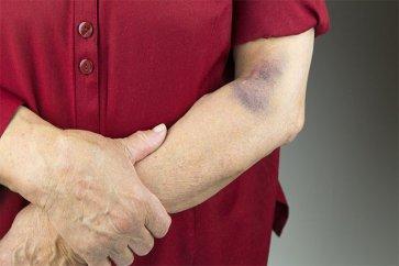 بدون ضربه و آسیبدیدگی، بدنتان کبود میشود! علت چیست؟