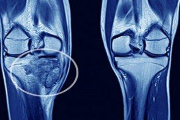 آشنایی با استئوسارکوم یا دومین سرطان شایع استخوان