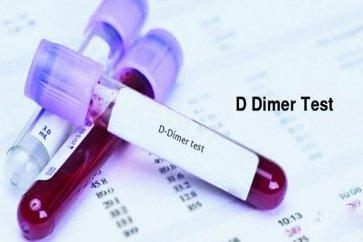 آزمایش دی دایمر یا تشخیص لخته خون چیست؟