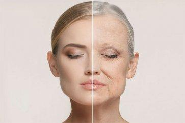 رفع تضمینی چین و چروک پوست به همراه روشهای خانگی