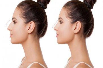هرآنچه درباره جراحی بینی باید بدانید
