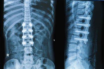 آشنایی با اقدامات و آمادگیهای  لازم برای جراحی فیوژن کمر