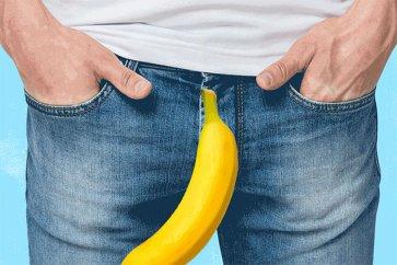 بیماری پیرونی یا کجی آلت تناسلی مردان چیست؟