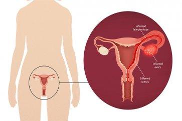 بیماری التهابی لگن یا عفونت لگن در زنان چیست؟
